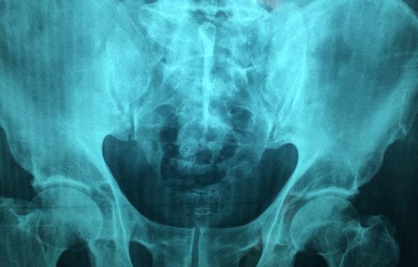 Medical Imaging and Diagnostic Radiology